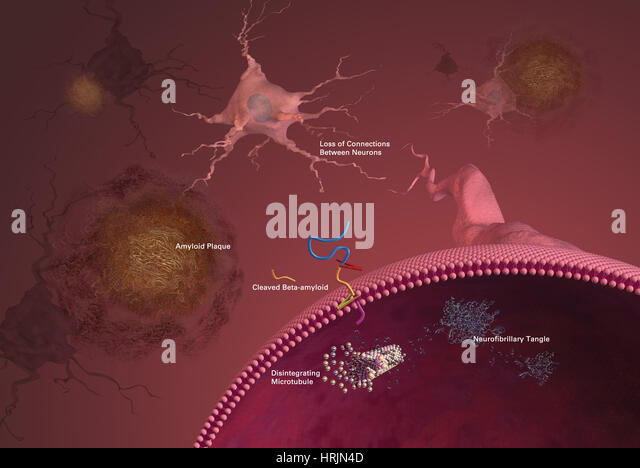 the characteristics of the alzheimers disease Alzheimer's disease exam 1 study -amyloid fibrils coalesce into neuritic plaques characteristic of ad frontotemporal dementia huntington's disease.