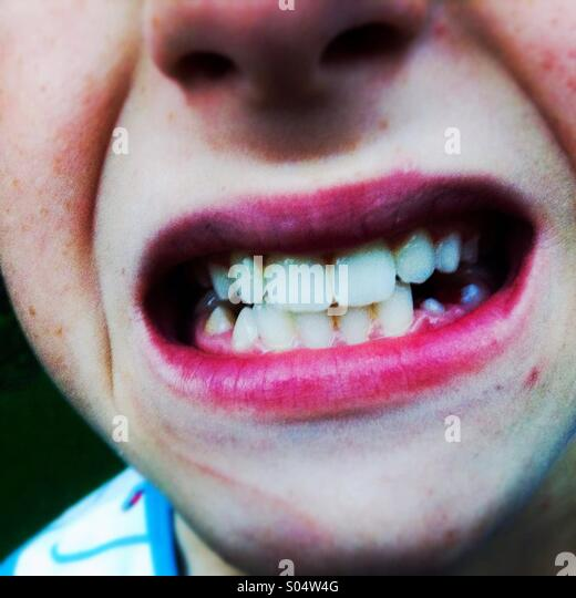 Boy crying and showing his teeth - Stock Image