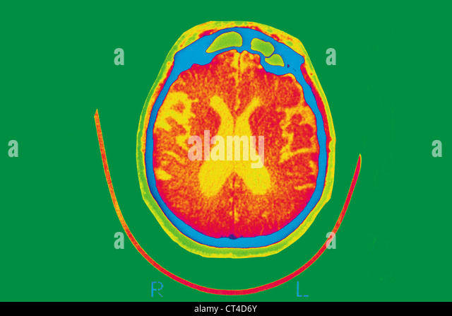 alzheimers disease 4 essay What is alzheimer's disease alzheimer's disease is a form of brain degeneration in which abnormal particles called neurofibrillary  4 basic blood tests.