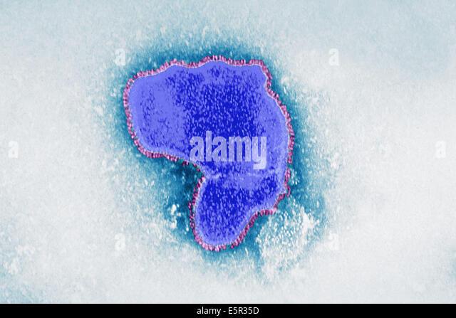 Color enhanced transmission electron micrograph (TEM) of Respiratory Syncytial Virus (RSV), A paramyovirus, RSV - Stock Image