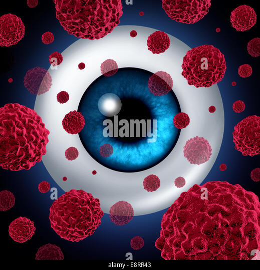 Eye cancer concept or intraocular cancers symbol as a human eyeball with cancerous cells spreading as a health care - Stock-Bilder