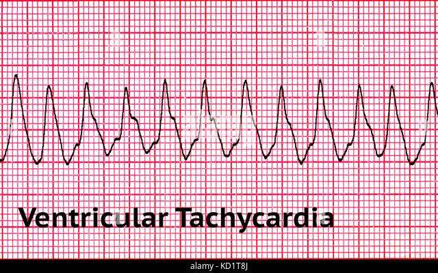 Ventricular tachycardia (VT) - Stock Image