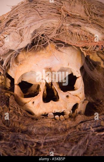Chile San Pedro de Atacama cranial deformation - Stock Image