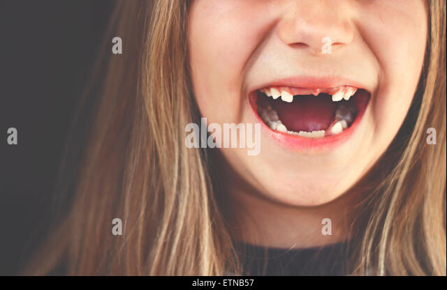 Close-up of a gap toothed girl laughing - Stock Image