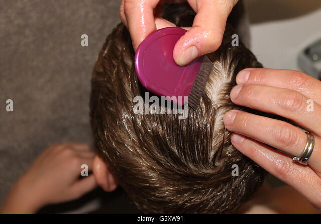 how to get rid of lice nits without the comb