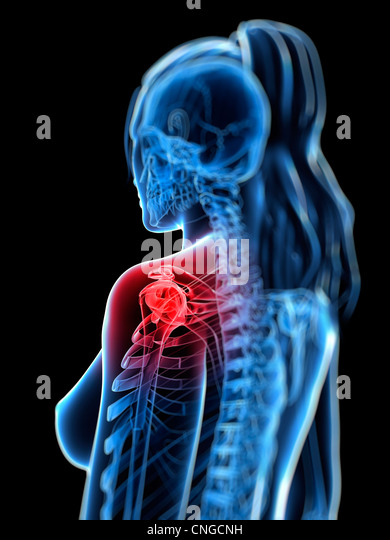 Shoulder pain  conceptual artwork - Stock Image