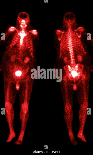 Abnormal Bone Scan Stock Photos Amp Abnormal Bone Scan Stock
