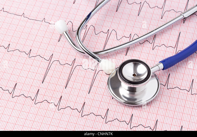 how to read an ecg printout