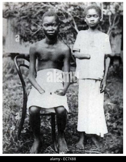 Amputation was frequently used to punish workers in the Congo Free State;   controlled by Leopold II of Belgium - Stock-Bilder