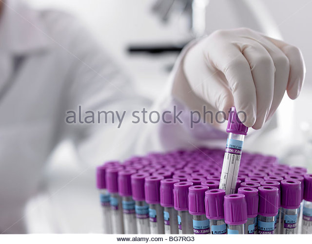 Scientist lifting test tube from tray - Stock Image