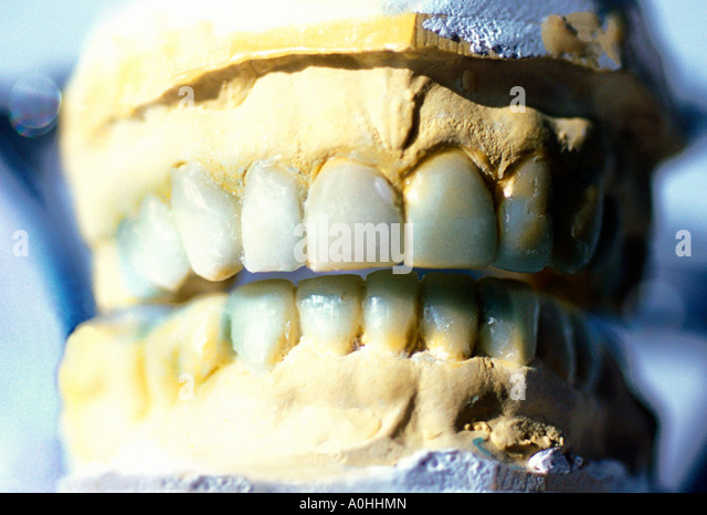 Dentist's Mold of Teeth - Stock Image