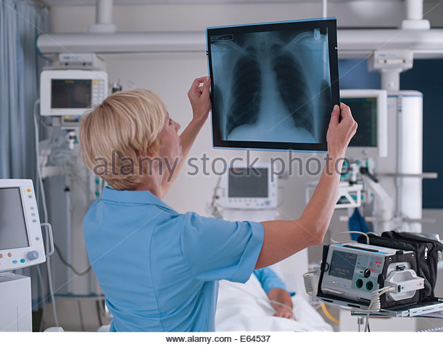 Nurse reviewing x-ray - Stock Image