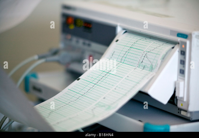 Heart monitor machine of 33 year old woman giving birth in the hospital, Chateauguay, Quebec, Canada - Stock Image