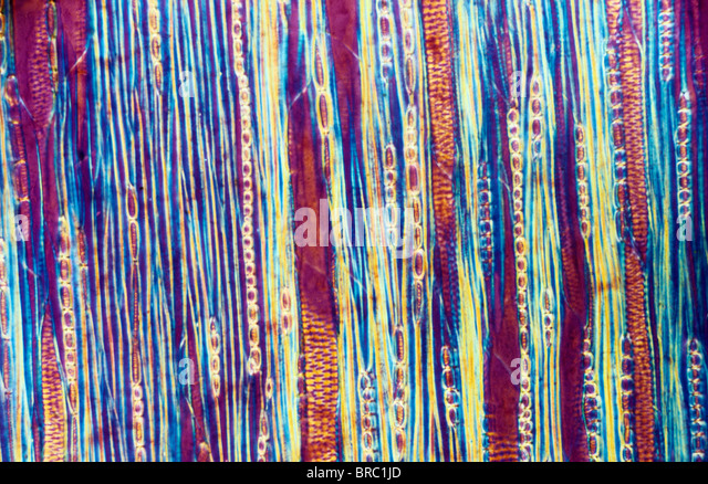 Light Micrograph (LM) of a longitudinal section showing xylem elements of a Ribes sp. stem, magnification x600 - Stock Image