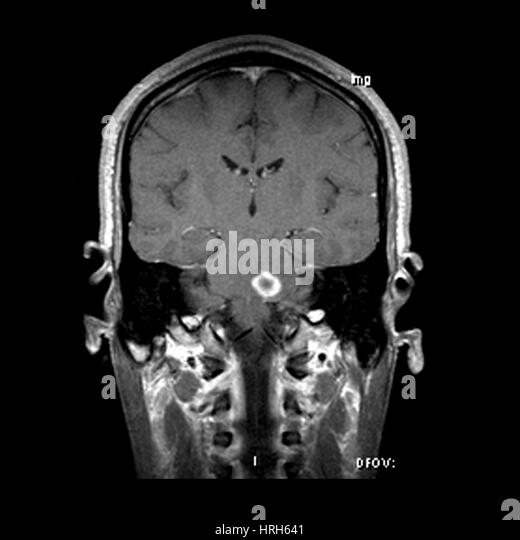 Multiple Sclerosis Black and White Stock Photos & Images - Alamy