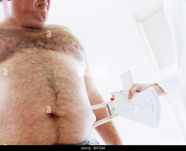 Body fat assessment. 39-year-old overweight man having his body fat measured. - Stock Image