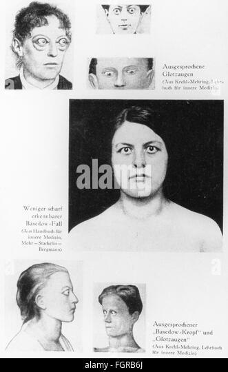 Grave's disease - Stock Image