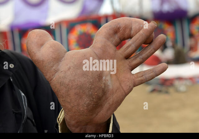 An Indian man suffering from Elephantiasis disease. - Stock Image