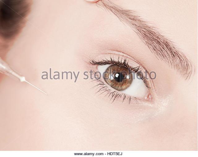 Close-up of eye of teenage girl getting botox injection. - Stock Image