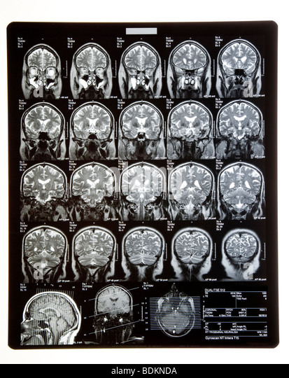 MRI SCANS or XRAYS of head showing brain and skull. - Stock Image