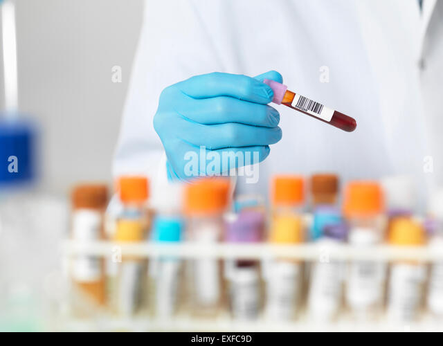 Close up of scientists hands selecting a blood sample for medical testing - Stock Image