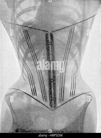 X-Ray of Woman Wearing Corset, 1908 - Stock Image