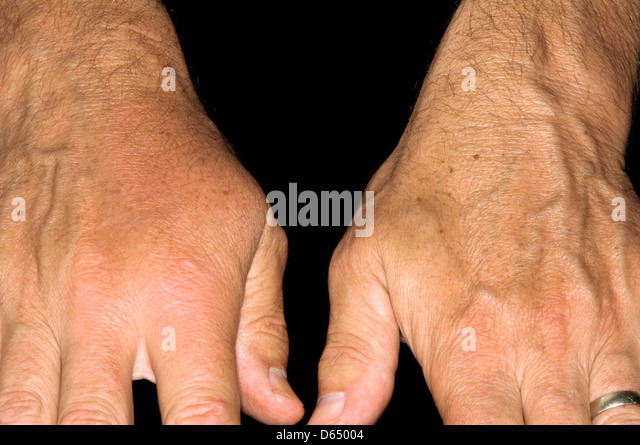 Rheumatoid disease - Stock Image