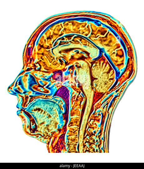 Computer enhanced false-colour Magnetic Resonance Image (MRI) of a mid-sagittal section through the head of a normal - Stock-Bilder