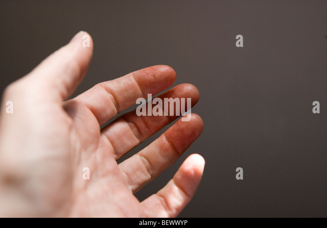 hand, fingers covered with human blood, closeup - Stock Image