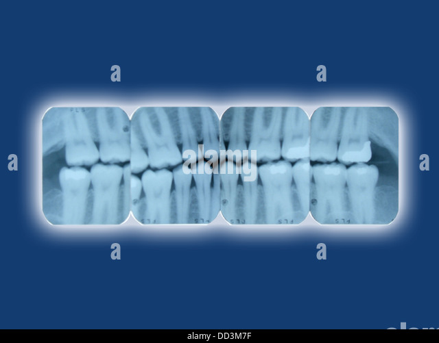 Dental x-ray sheets glowing on a blue background - Stock Image