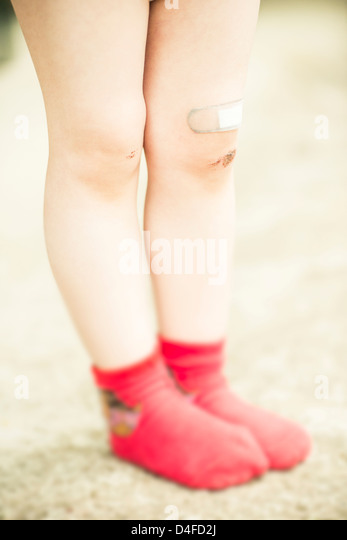 Girl 3 years old with red socks and scrape wound on her legs. - Stock-Bilder
