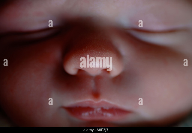 Milia milk spots on baby's nose - Stock Image