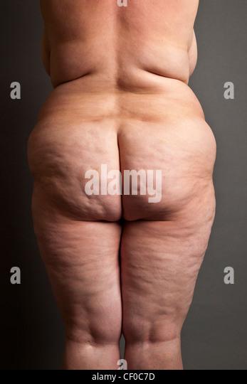 Overweight ass