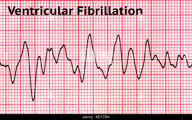 Ventricular fibrillation (VF) - Stock Image