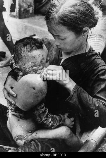 VIETNAM WAR South Cam Che Badly burned Vietnamese baby caught in bursting napalm bomb between US Marines and North - Stock-Bilder