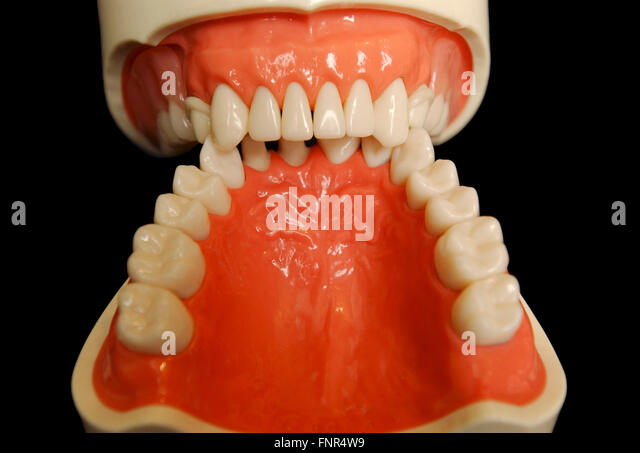 A set of dentures. Dentures or false teeth are made from an acrylic base on which acrylic or ceramic teeth are mounted. - Stock Image