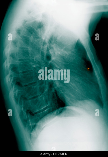 Chest X-ray metal foreign body in lung - Stock Image