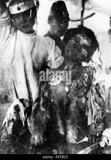Atomic Bomb Nagasaki1945 - Stock Image