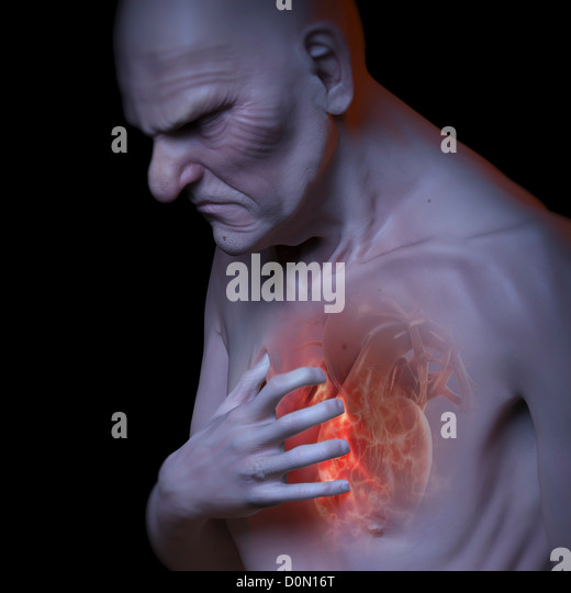 An elderly male grips his chest due to a heart attack. - Stock Image