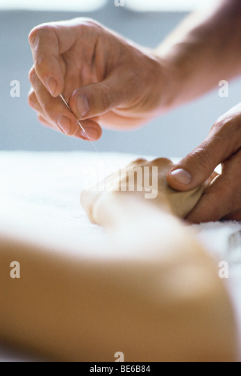 Acupuncture needle being inserted in patient's hand - Stock Image