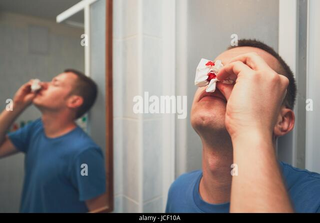Nose Bleed Stock Photos Nose Bleed Stock Images Alamy