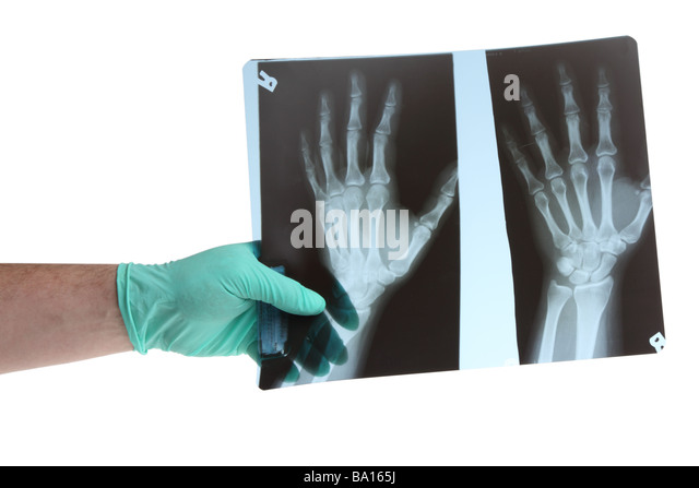 Doctors hand holding xray cutout on white background - Stock Image