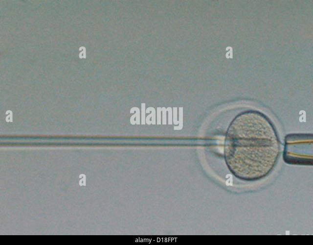 In vitro fertilization of an egg - Stock Image