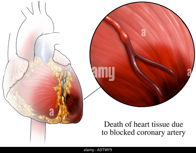 Heart Attack - Stock Image