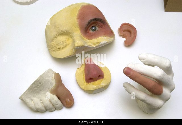 MKG-Labor zeigen Nase Ohr Auge und Finger Rekonstruktion UK Stockbild
