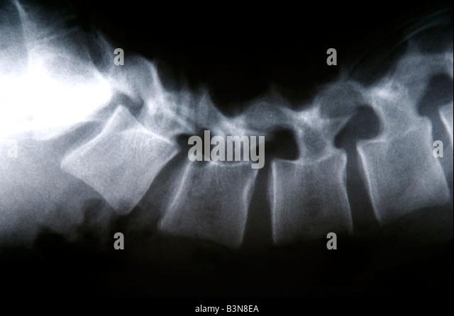 X-ray, Nahaufnahme Stockbild