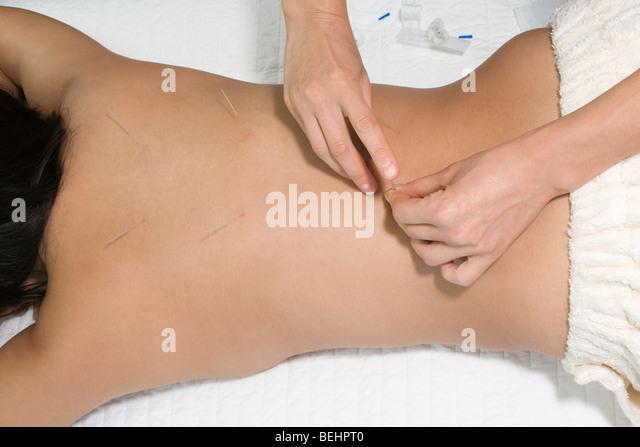 Frau erhält eine Akupunkturbehandlung von einem Therapeuten Stockbild