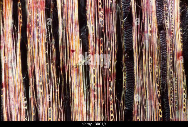 Leichte Schliffbild (LM) von einem Längsschnitt zeigt Xylem Elemente aus einem Ribes SP. Stamm, Vergrößerung Stockbild