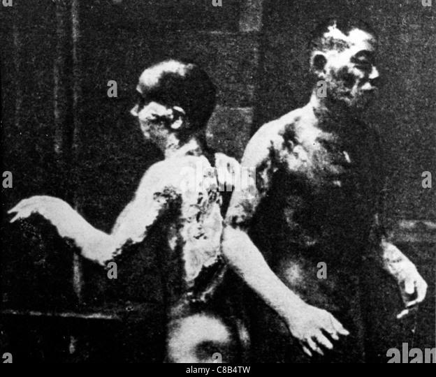 zwei brennen nach der atomaren Explosion in Hiroshima, 1945 Stockbild