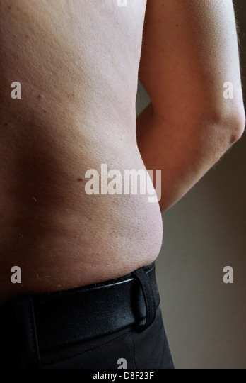 Mann mit ungesunden Körperform Stockbild